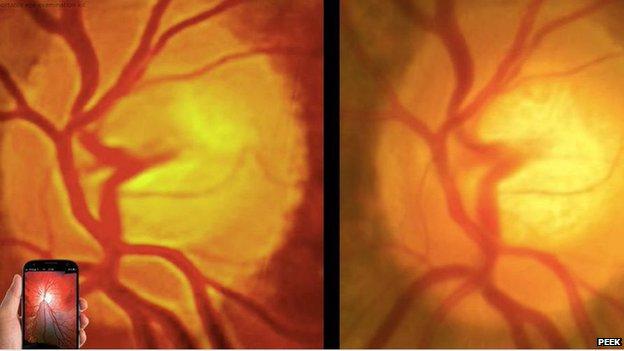 Imaginea din stanga este facuta cu Peek Retina iar cea din dreapta cu o camera de 30.000 de euro